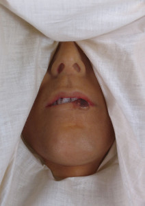 A moulage of carcinoma of the lip. (image courtesy of UNMC McGoogan Library of Medicine)