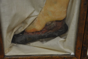 A moulage depicting gangrene as a result of diabetes. (Photo by Ryan Robertson, KVNO News)