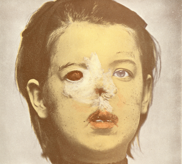An image of Hereditary Syphilis from the Atlas of the Diseases of the Skin 1902 (courtesy UNMC McGoogan Library of Medicine)